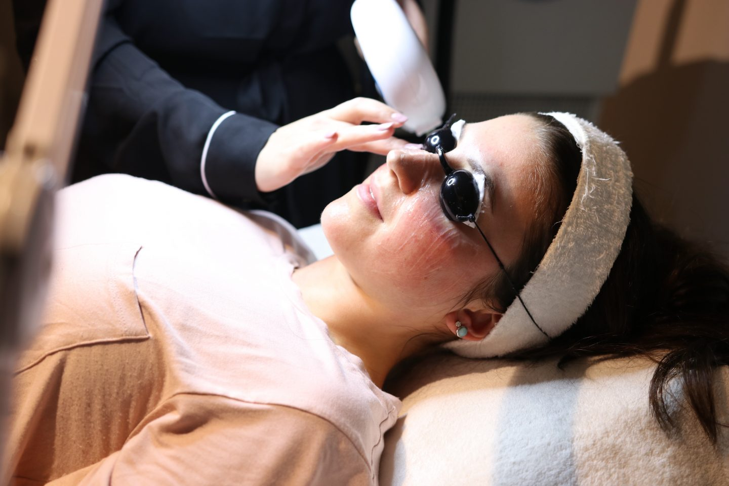 Treating my Rosacea with IPL Photorejuvination